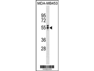 T Antibody (N-term)