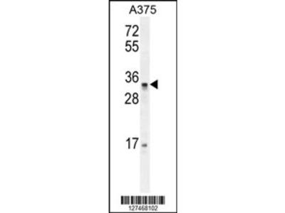 PUSL1 Antibody (C-term)