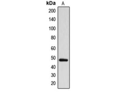 Anti-ARRDC1 Antibody