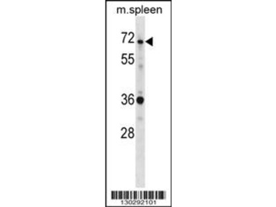 SH3BP2 Antibody (Center)