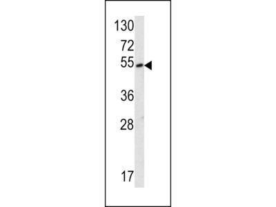 SUV4-20H2 Antibody (Center)