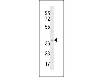 YV012 Antibody (C-term)
