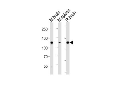 Mouse Ptk2b Antibody (P769)
