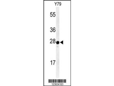 AANAT Antibody (N-term)