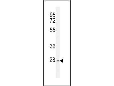 PTPN20A Antibody (Center)