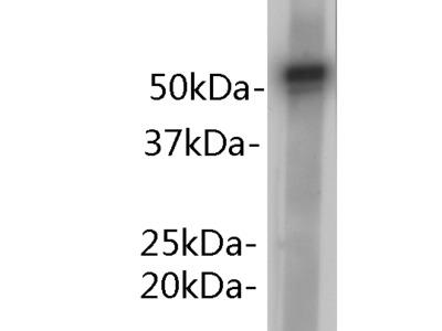 alpha 1-antitrypsin Antibody