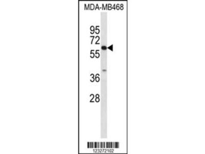 CES7 Antibody (Center)