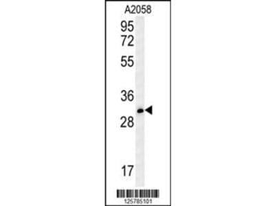 TRI73 Antibody (C-term)
