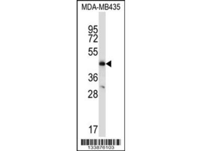 CCR9 Antibody (C-term)