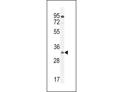 NUSAP Antibody (N-term)