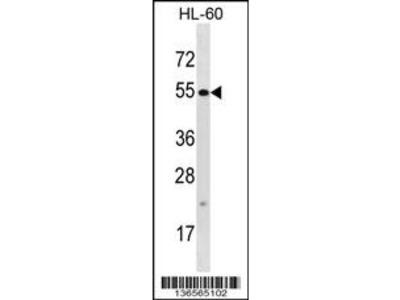 TTC34 Antibody (C-term)