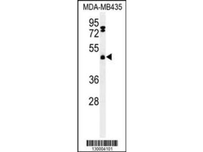 FBXL2 Antibody (C-term)