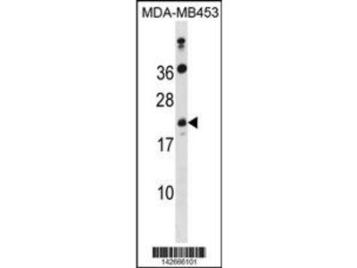 ATP5S Antibody (N-term)