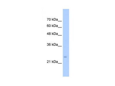 TMEM69 antibody
