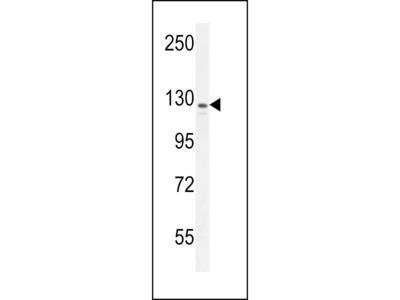 IBTK Antibody (Center)