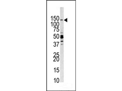 PI3CKG Antibody (C-term)
