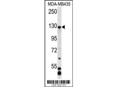 C7orf63 Antibody (N-term)