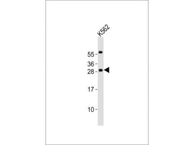PCGF1 Antibody (Center)