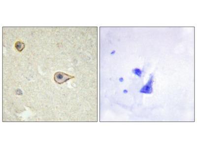 CYP19 antibody