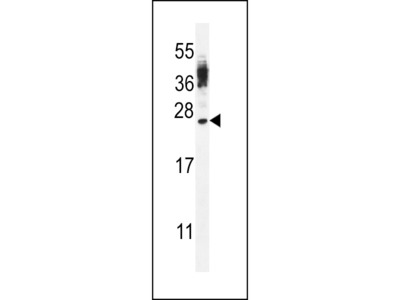 CT45A4/CT45A3/CT45A2/CT45A1/CT45A6 Antibody (Center)