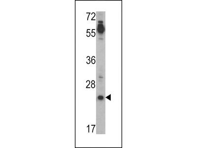 CRIPTO (TDGF1) Antibody (N-term)