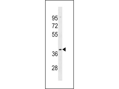 OR5AK2 Antibody (C-term)