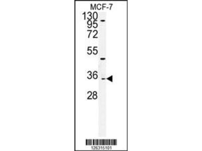 TTPAL Antibody (C-term)
