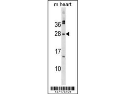 MSC Antibody (C-term)