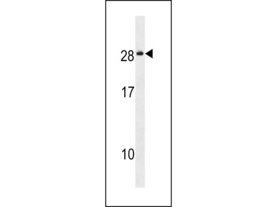 NKAI4 Antibody (C-term)