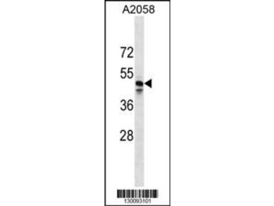 MRGPRF Antibody (C-term)