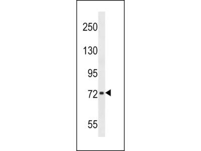 CHADL Antibody (Center)