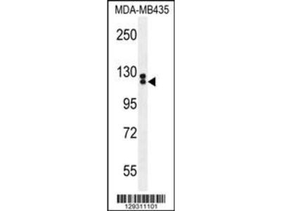 TTLL13 Antibody (Center)