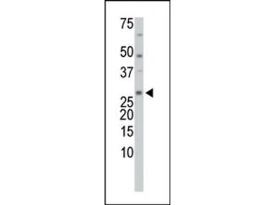 TXNL1 (TRP32/TrxL) Antibody (C-term)
