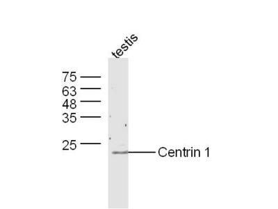 Centrin 1 Antibody, Biotin Conjugated