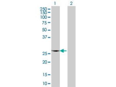 Mouse Anti-F8 Antibody