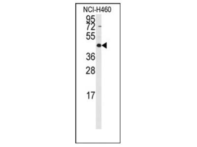 anti RMND5B (C-term)