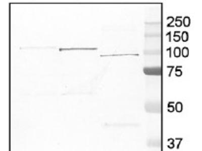 Anti- GP ; glycogen phosphorylase