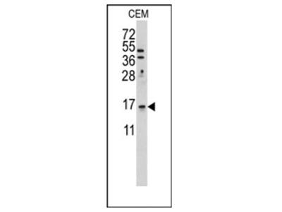 anti LSM1 (C-term)
