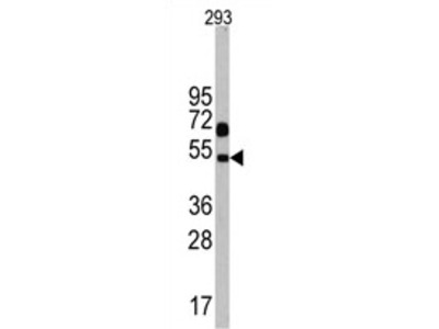 anti Neuronal pentraxin-1
