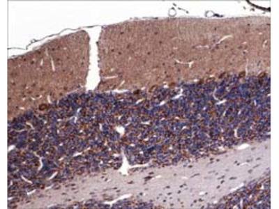 Sema-3A and NRP1/Plexin A1 Receptor Antibody Sampler Kit