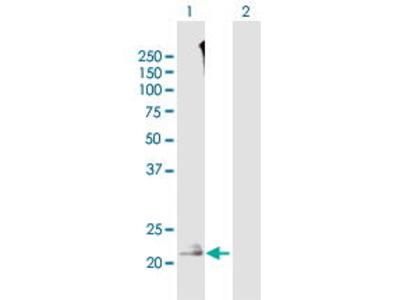 Mouse Anti-TMEM52 Antibody