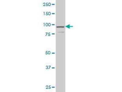 Mouse Anti-DCAMKL1 Antibody