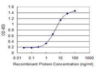 Mouse Anti-PLEC1 Antibody
