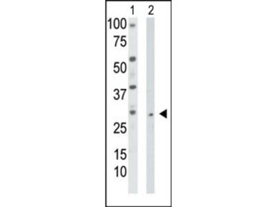 anti Thymidine kinase 2 (TK2) (N-term)