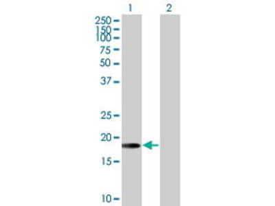 Mouse Anti-ARL5A Antibody