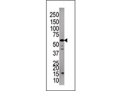 PPP3CC (C-term) rabbit polyclonal antibody, Purified