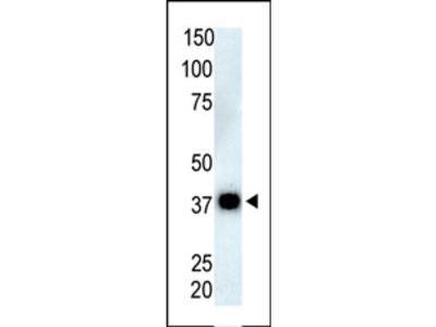 PPP6C (N-term) rabbit polyclonal antibody, Purified