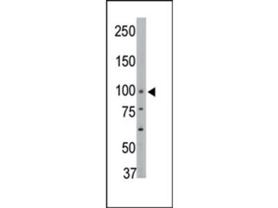 PTPH1 (PTPN3) (Center) rabbit polyclonal antibody, Purified