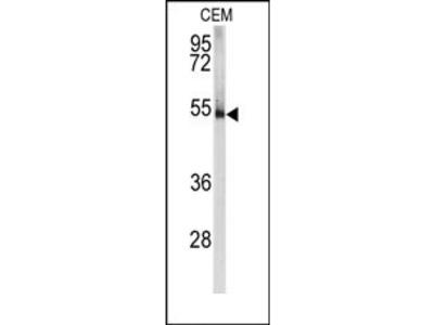 anti PRKAR1A (N-term)