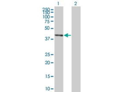 Mouse Anti-BCS1L Antibody